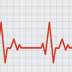 Highs and Lows Heart Rate Plots and Causes